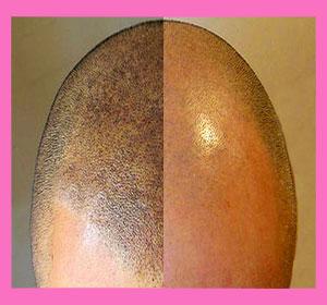 hairline-tattoo-1