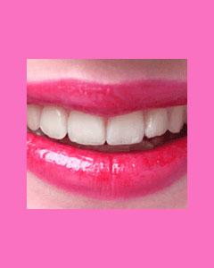 tooth-veneers-1